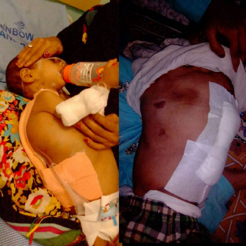 18-month-old suffers congenital Lymphangioma, treated