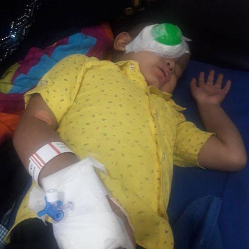 4-year-old suffers from Bilateral Retinoblastoma, treated